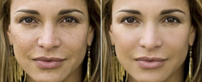 jak-zrobic-szybki-retusz-kóry-twarzy-w-photoshopie